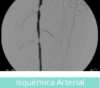 clinicaslucq-especialidades-isquemica
