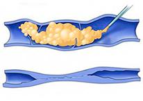 clinicaslucq-esclerosis-con-espuma