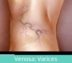 clinicaslucq-especialidades-venosa
