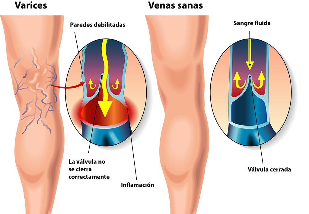 problemas_venosos_clinicalucq