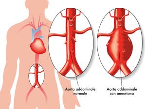 patologia-aneurismatica-clinica-lucq