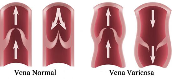 Vena-Varicosa-Clinica-Lucq