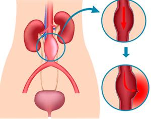Aneurisma-aorta-abdominal-clinica-lucq